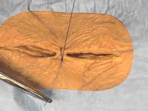 suture cutanee